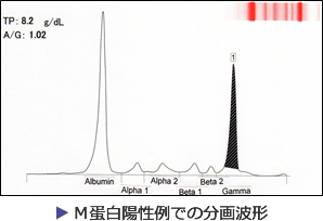 M蛋白陽性例での分画波形
