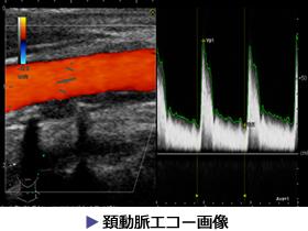 頚動脈エコー画像