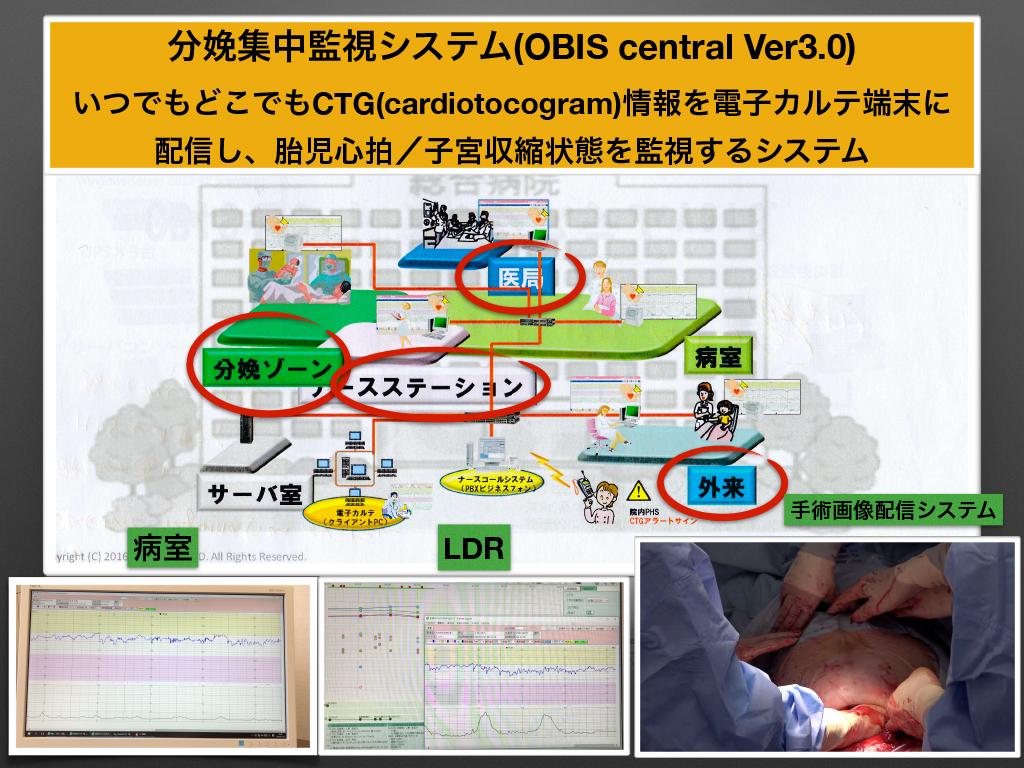 妊娠分娩集中管理システム(OBIS)