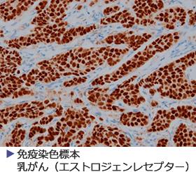 免疫染色標本乳がん(エストロジェンレセプター