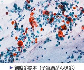 細胞診標本(子宮頸がん検診